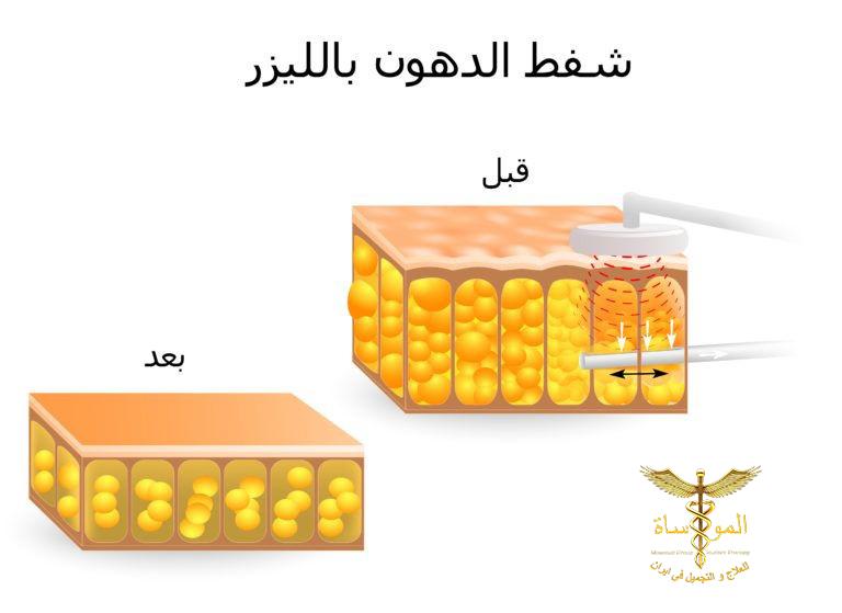 شفط الدهون في إيران شركة المواساة