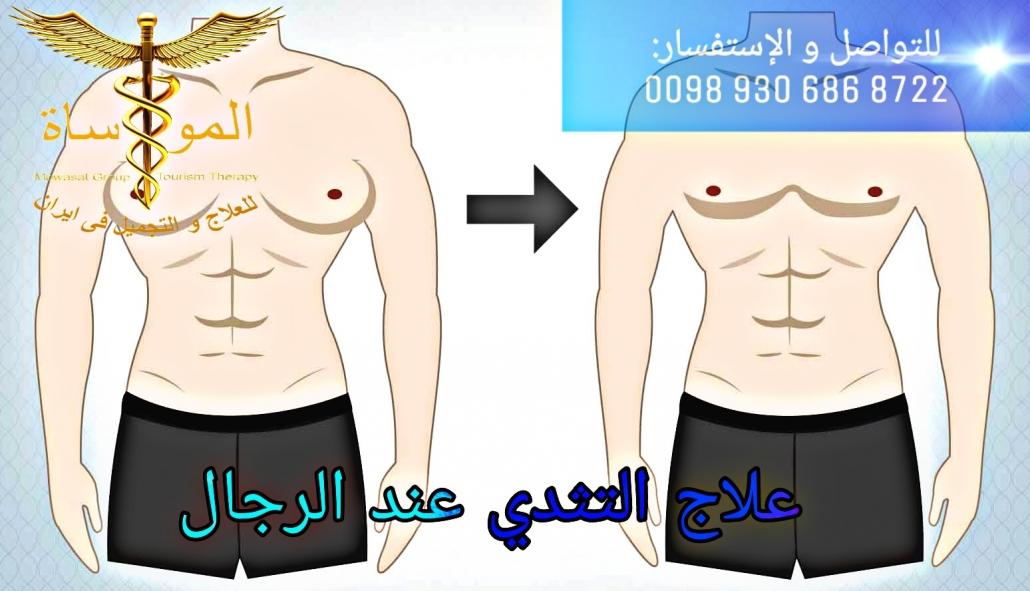 علاج التثدي عند الرجال في إيران بأرخص و أنسب الأسعار شركة المواساة