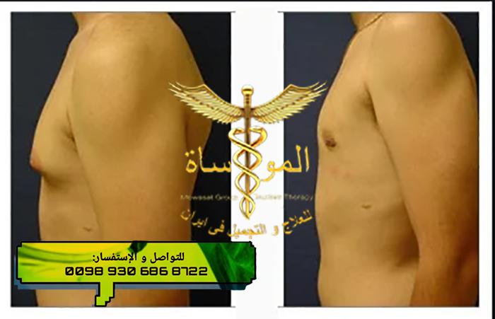 تصغير الثدي للرجال في إيران