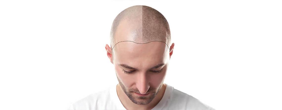عملية زراعة الشعر في ايران